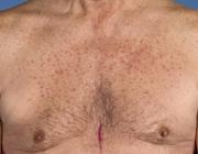 Behandeling van huidafwijkingen door specifieke medicatie in de oncologie