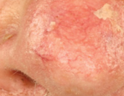 Therapeutische opties bij actinische keratose