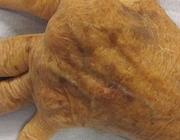 Barictinib (Olumiant®)
