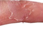 Probiotica ter preventie van eczeem bij kinderen