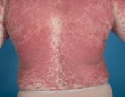 Geneesmiddelenreactie en de huid