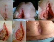 Slechte wondgenezing als gevolg van een vitamine C-deficiëntie bij chirurgische patiënten: drie case reports