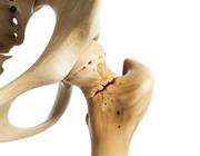 Protonpompremmers en het risico op een heup- of wervelfractuur bij postmenopauzale vrouwen