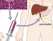Transplantatiemogelijkheden bij diabetes mellitus type 1